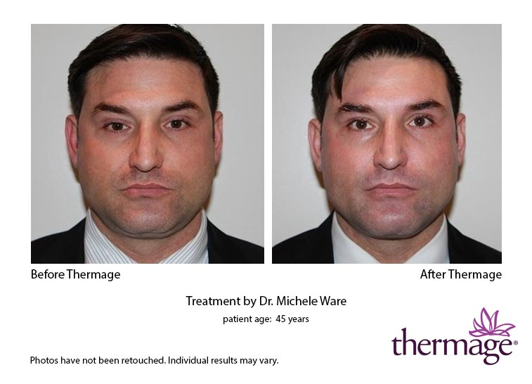 thermage-before-after